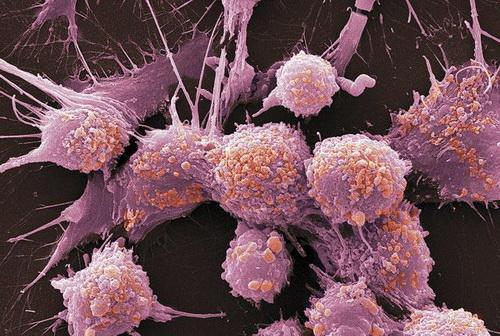 Произошла революция в сфере диагностики рака предстательной железы!