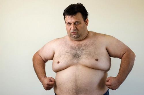 Гинекомастия у современных мужчин встречается все чаще.