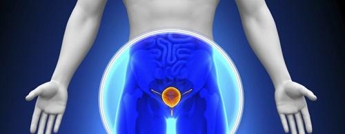 Что делать при обострении простатита?
